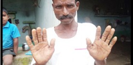 Thipanna- Reduced skin lesions on palm after 6 months treatment, August 13, 2014